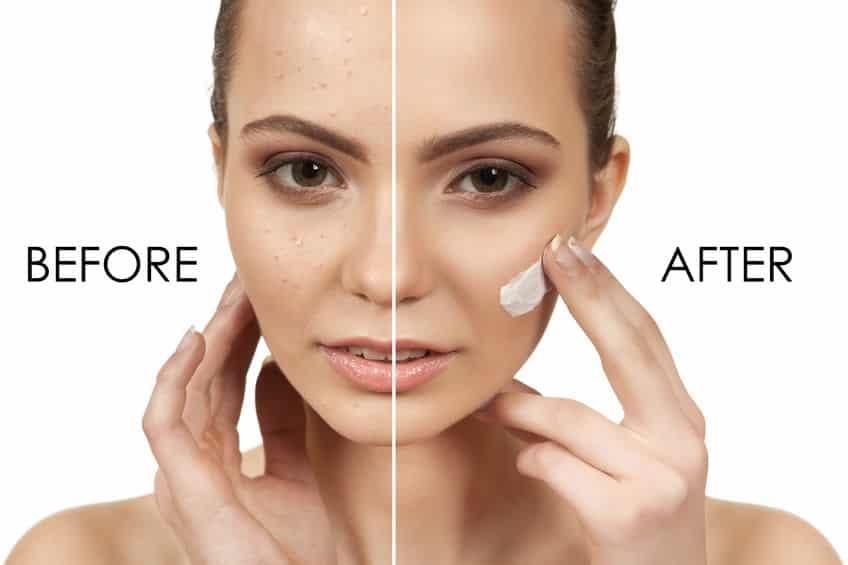 Acne behandeling amsterdam