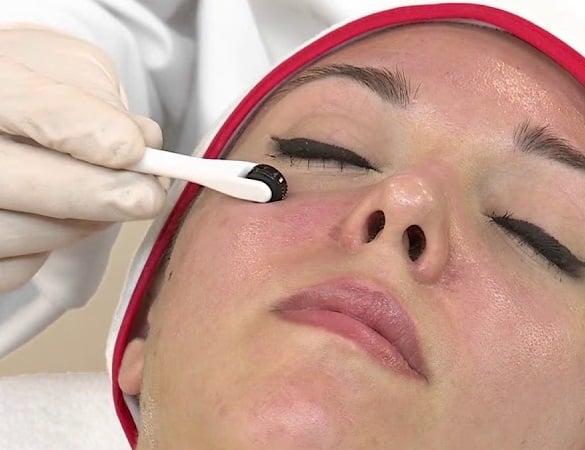 Microneedling-oog-behandeling